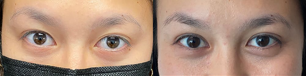 Eyelid Surgery Gallery - Patient 47088152 - Image 1