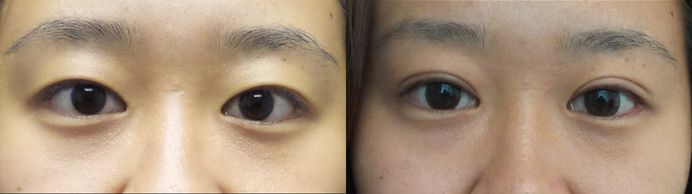 Eyelid Surgery Gallery - Patient 47088154 - Image 1