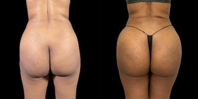 Brazilian Butt Lift Gallery - Patient 47088232 - Image 1