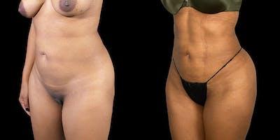 Brazilian Butt Lift Gallery - Patient 47088232 - Image 2