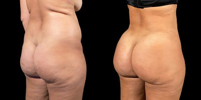 Brazilian Butt Lift Gallery - Patient 47088233 - Image 1