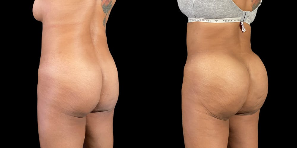 Brazilian Butt Lift Gallery - Patient 47088234 - Image 1