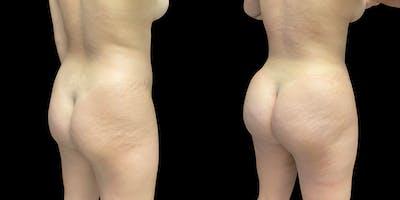 Brazilian Butt Lift Gallery - Patient 47088235 - Image 1