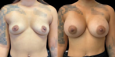 Breast Augmentation Gallery - Patient 47089191 - Image 1