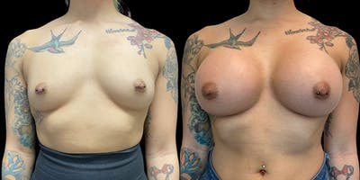 Breast Augmentation Gallery - Patient 47089192 - Image 1