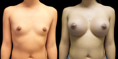 Breast Augmentation Gallery - Patient 47089193 - Image 1