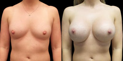 Breast Augmentation Gallery - Patient 47089194 - Image 1