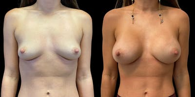 Breast Augmentation Gallery - Patient 47089195 - Image 1