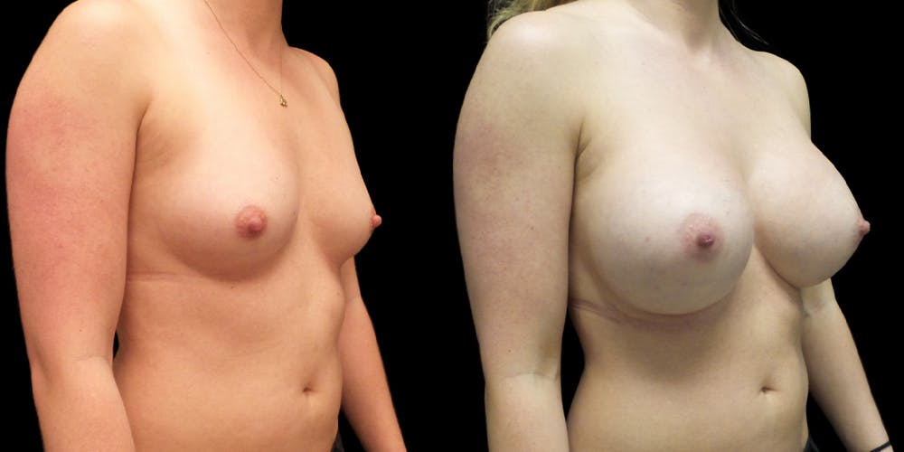Breast Augmentation Gallery - Patient 47089194 - Image 2
