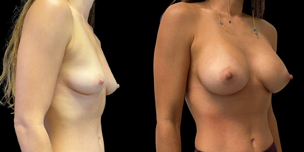 Breast Augmentation Gallery - Patient 47089195 - Image 2