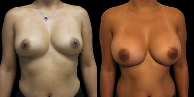 Breast Augmentation Gallery - Patient 47089196 - Image 1