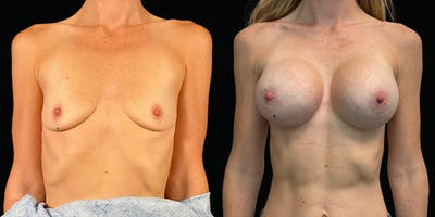 Breast Augmentation Gallery - Patient 47089197 - Image 1
