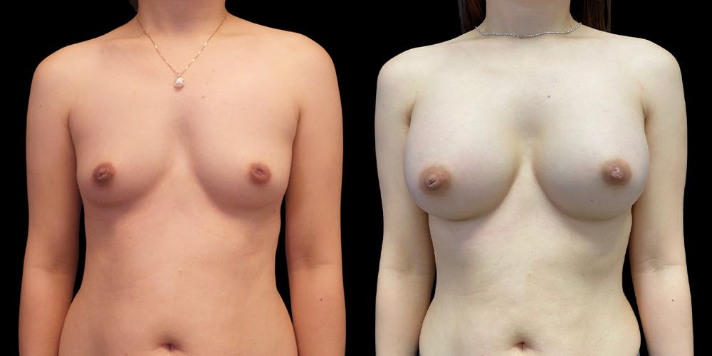 Breast Augmentation Gallery - Patient 47089198 - Image 1