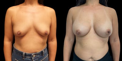 Breast Augmentation Gallery - Patient 47089199 - Image 1