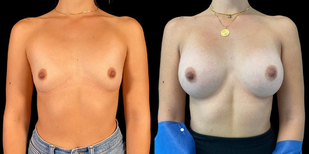 Breast Augmentation Gallery - Patient 47089200 - Image 1