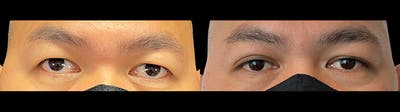 Eyelid Surgery Gallery - Patient 47088153 - Image 1