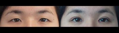 Eyelid Surgery Gallery - Patient 47088155 - Image 1