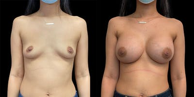 Breast Augmentation Gallery - Patient 50508412 - Image 1