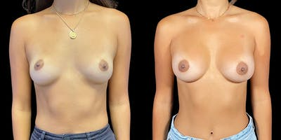 Breast Augmentation Gallery - Patient 50508411 - Image 1