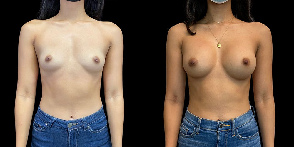 Breast Augmentation Gallery - Patient 50509200 - Image 1