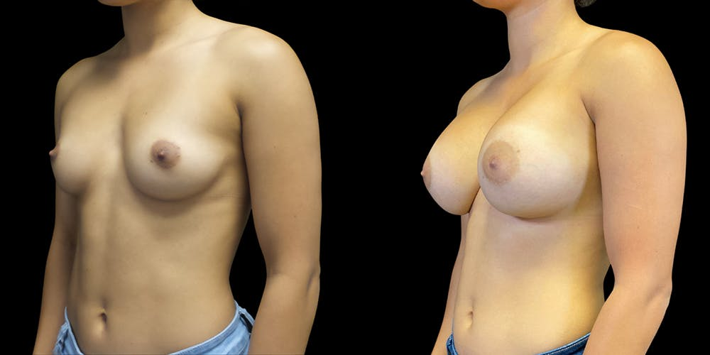 Breast Augmentation Gallery - Patient 50509232 - Image 1