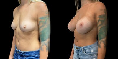 Breast Augmentation Gallery - Patient 50509246 - Image 1