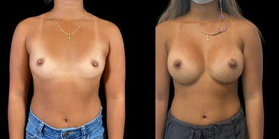 Breast Augmentation Gallery - Patient 50511183 - Image 1