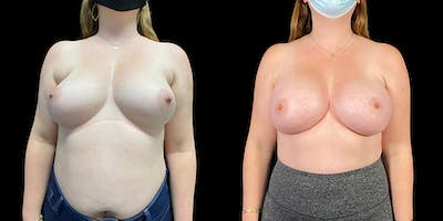 Breast Augmentation Gallery - Patient 50511196 - Image 1