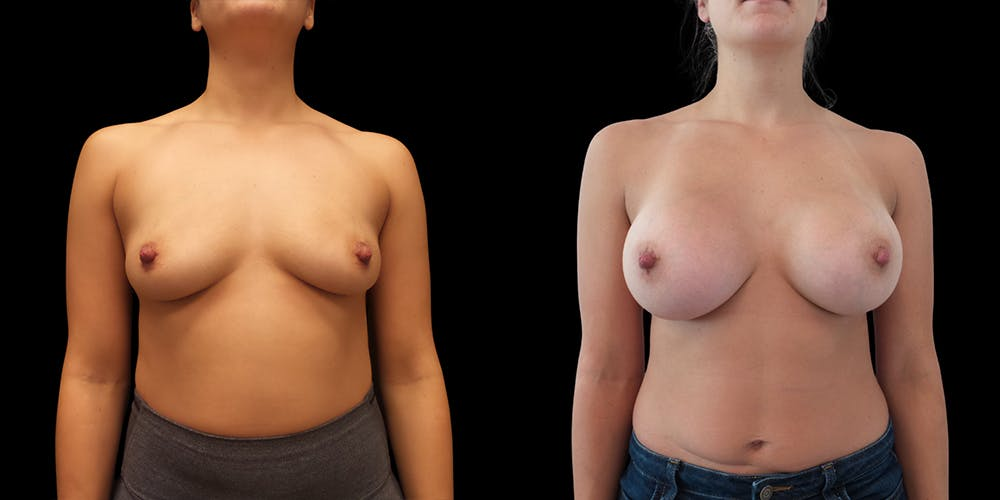 Breast Augmentation Gallery - Patient 50511204 - Image 1