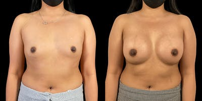 Breast Augmentation Gallery - Patient 50511214 - Image 1