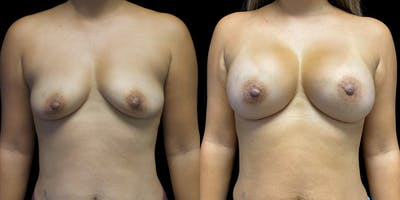 Breast Augmentation Gallery - Patient 50511227 - Image 1