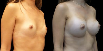 Breast Augmentation Gallery - Patient 50511235 - Image 1