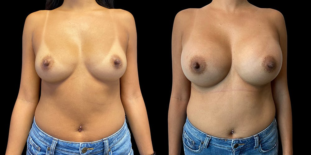 Breast Augmentation Gallery - Patient 50511251 - Image 1