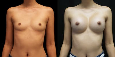 Breast Augmentation Gallery - Patient 50511260 - Image 1