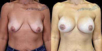 Breast Lift with Implants Gallery - Patient 53622661 - Image 1
