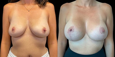 Breast Lift with Implants Gallery - Patient 53622671 - Image 1