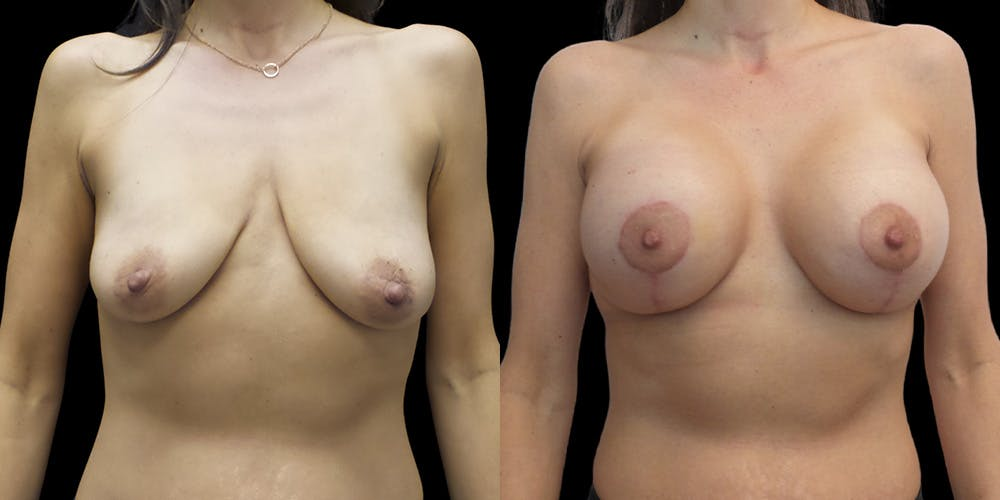 Breast Lift with Implants Gallery - Patient 53828525 - Image 1