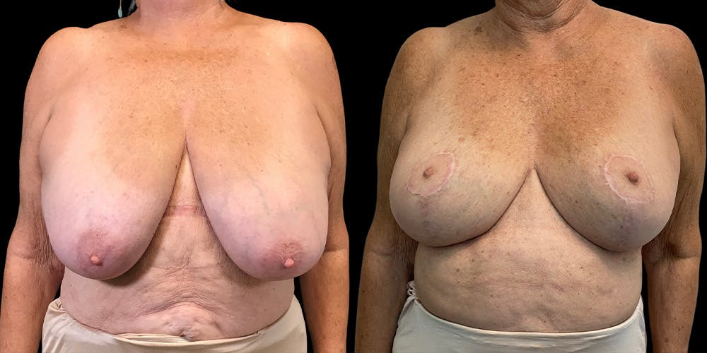 Breast Reduction Gallery - Patient 53828628 - Image 1