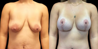 Breast Lift with Implants Gallery - Patient 53828745 - Image 1