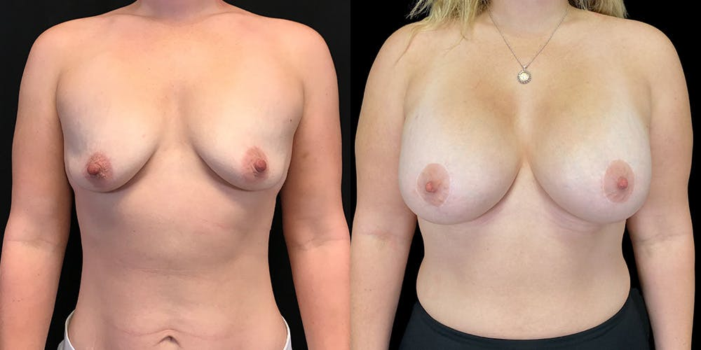 Breast Lift with Implants Gallery - Patient 38290661 - Image 1