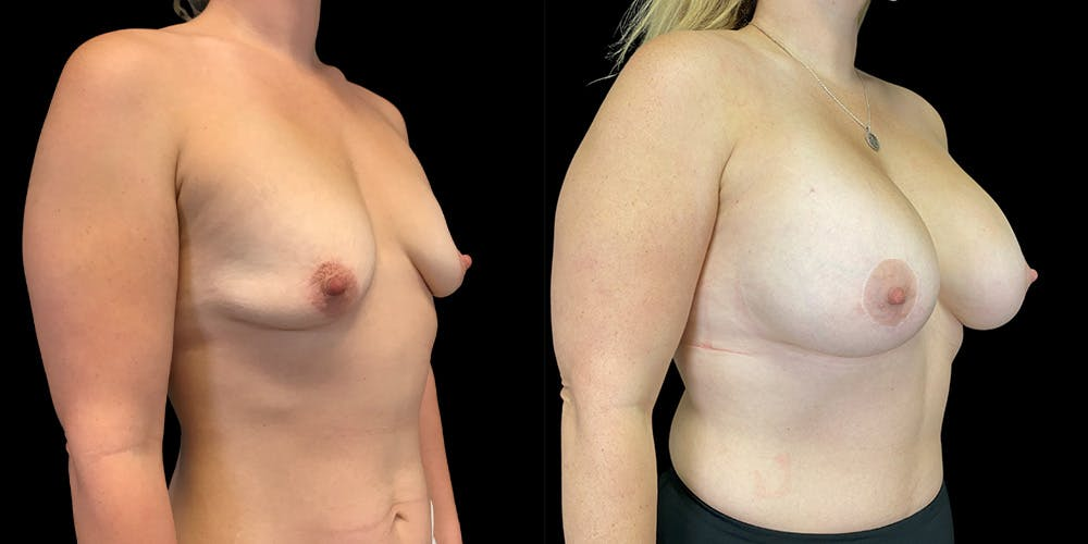 Breast Lift with Implants Gallery - Patient 38290661 - Image 2
