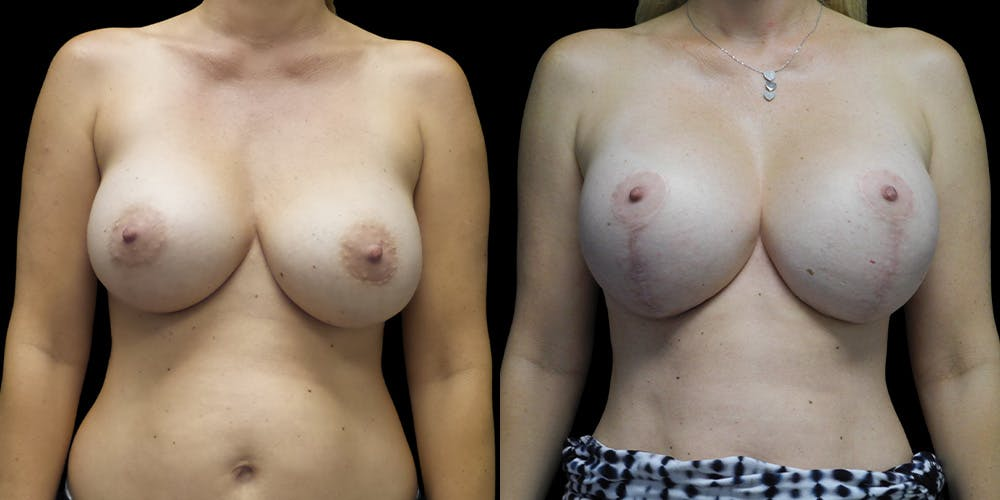 Breast Lift with Implants Gallery - Patient 54046290 - Image 1