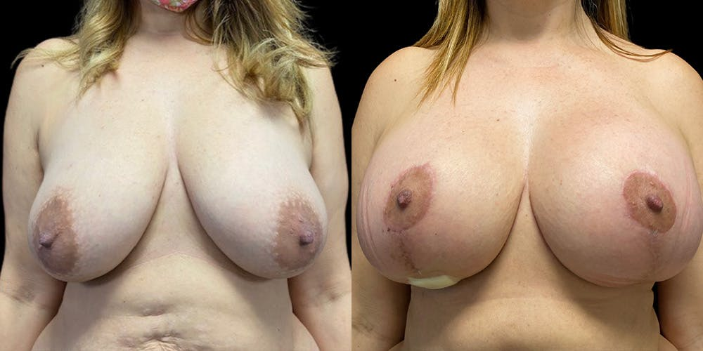 Breast Lift with Implants Gallery - Patient 53830006 - Image 1