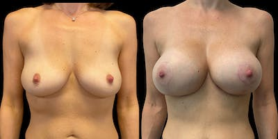 Breast Lift with Implants Gallery - Patient 53830040 - Image 1