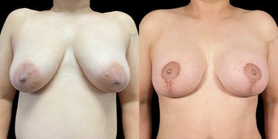 Breast Lift with Implants Gallery - Patient 53830067 - Image 1