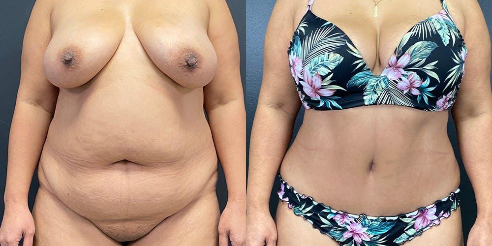 Abdominoplasty Gallery - Patient 54674548 - Image 1