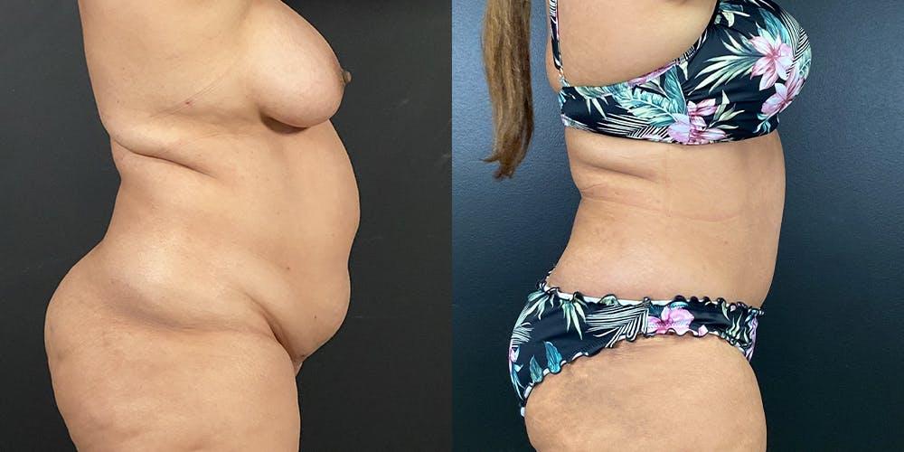 Abdominoplasty Gallery - Patient 54674548 - Image 2