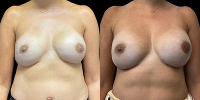 Breast Reconstruction Gallery - Patient 54674691 - Image 1