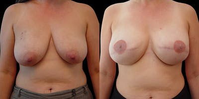 Breast Reconstruction Gallery - Patient 54674692 - Image 1