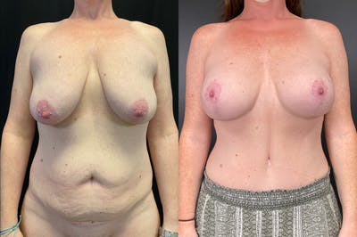 Mommy Makeover Gallery - Patient 54869397 - Image 1